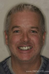 Dr. John Nosti: Drab to Fab Full Mouth Rehab Essentials