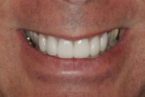 Violations of Smile Design #3: The Social Six