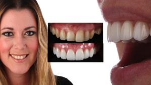 Violations of Smile Design #4: Four Central Incisors