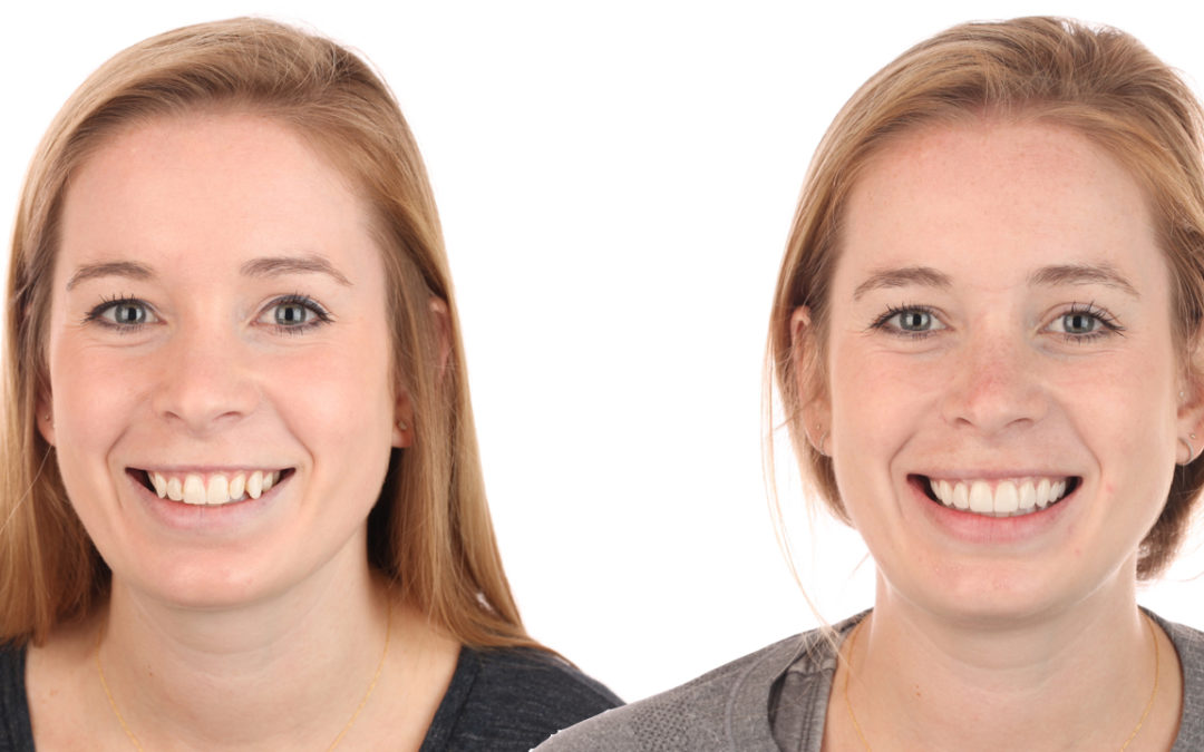 In the Op Learning: Planning for Symmetry in Smile Design