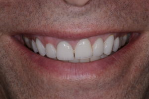 """The healthy patient of this """"missing tooth"""" case study."""
