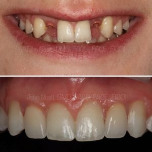 Missing Teeth Before and After