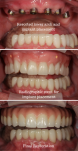 Cancer Survivor Case Study: Resorted lower arch and implant placement