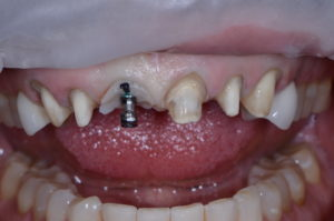 """Existing restorations were removed for this """"missing tooth"""" case study."""