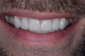 """""""Missing Tooth"""" case study Post Op Final"""
