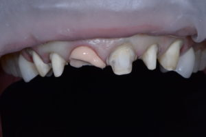 """""""Missing Tooth"""" case study Retracted operative"""