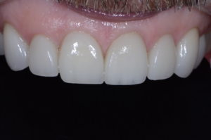 """""""Missing Tooth"""" case study after retracted"""