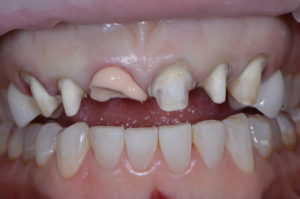 """""""Missing Tooth"""" case study retracted op 2"""