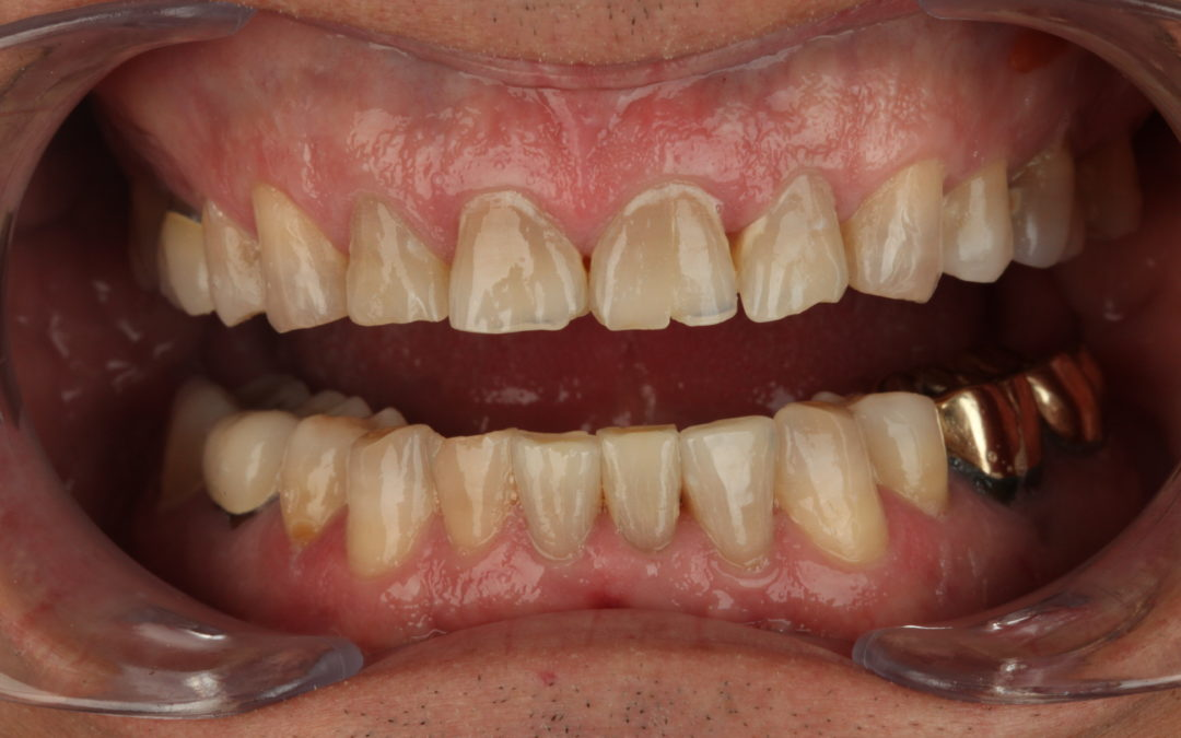 When Occlusal Instability Presents As Aesthetic Opportunity