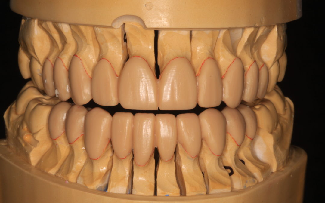 Taking Control of Vertical Dimension Changes in Dentistry: Control Bites Part 1