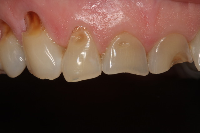 Functional Dentistry: Answers to Dental Occlusion Questions