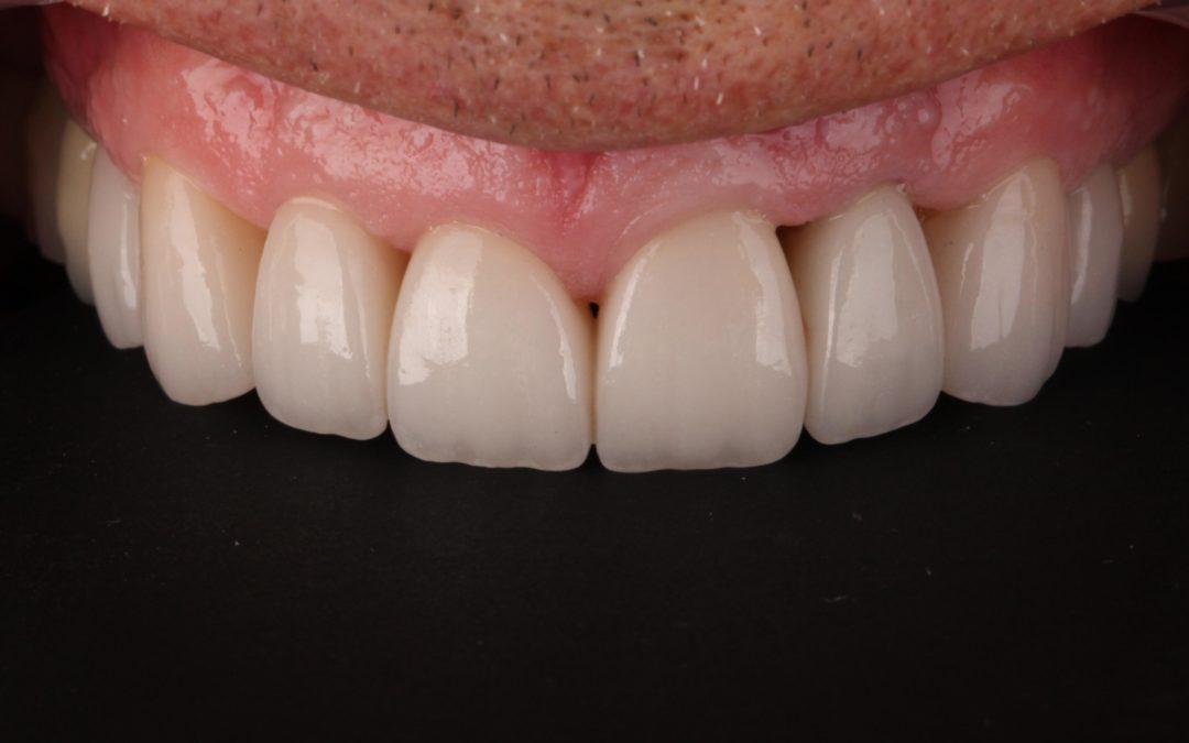 Aesthetic Solutions for Treating Black Triangles: Avoiding the Smile Killer